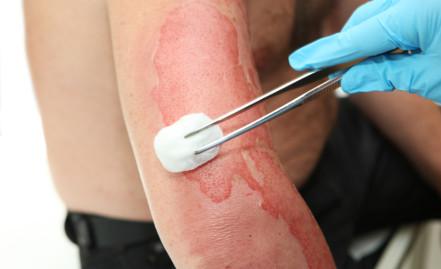 Classifying Burns