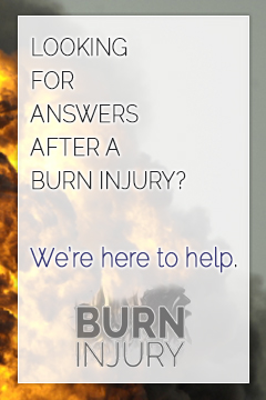 After a Burn Injury, we're here to help.